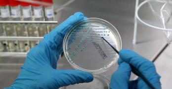 Бакпосев на микрофлору назначается для определения причины заболевания и выявления чувствительности возбудителя к антибиотикам