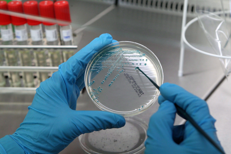 Бакпосев на микрофлору: процедура и расшифровка анализа