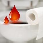 Алая кровь в кале может указывать на очень серьезные заболевания
