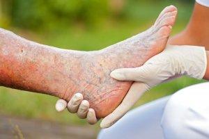 Тромбоз поверхностных вен нижних конечностей при отсутствии правильного лечения может вызвать очень опасные осложнения