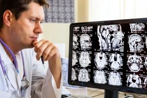 МРТ – эффективная диагностика состояния сосудов головного мозга