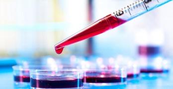 Общий анализ крови - это эффективный и самый распространенный лабораторный метод исследования состояния здоровья человека