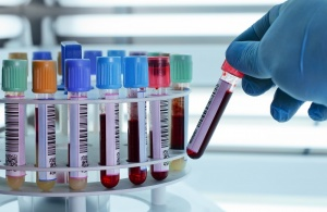 Лейкоцитарная формула – это процентное соотношение разных форм лейкоцитов в крови и подсчет их числа в единице объема