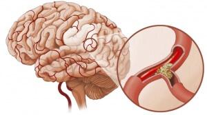 В большинстве случаев ангиоспазм является маскировкой развития некоторых тяжелых недугов