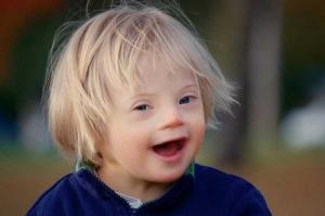 Синдром Дауна – это генетическая аномалия, которая возникает вследствие увеличения количества хромосом