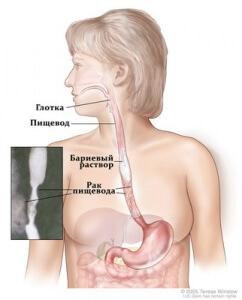 Рентген пищевода – это информативный и неинвазивный метод диагностики