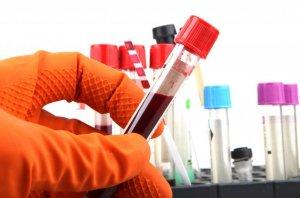 Лейкоциты – белые кровяные клетки иммунной системы, которые защищают организм человека от разных инфекций