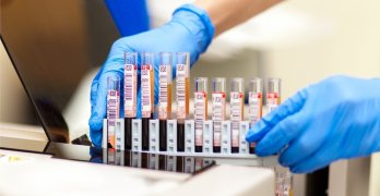 Норма лейкоцитов в крови варьируется в зависимости от возраста человека