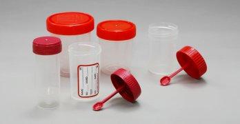 Анализ кала – это эффективный лабораторный метод диагностики ЖКТ