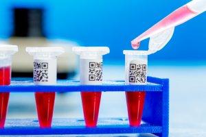 Анализ крови на раковые клетки и его расшифровка