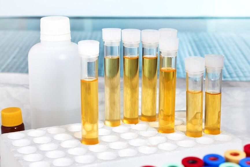 Пиурия: лейкоциты сплошь в моче