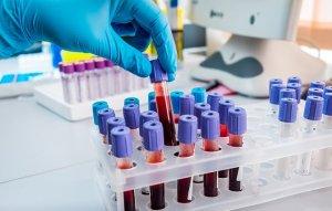 Анализ крови на сахар с нагрузкой – это эффективный метод диагностики сахарного диабета