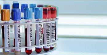 Биохимический анализ крови – эффективный лабораторный метод исследования уровня билирубина