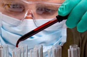 Анализ крови на РМП - это лабораторный метод диагностики сифилиса