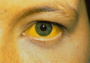 Высокий билирубин может указывать на серьезные заболевания