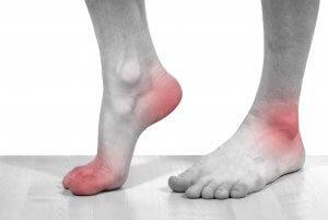 Гиперурикемия может спровоцировать развитие подагры