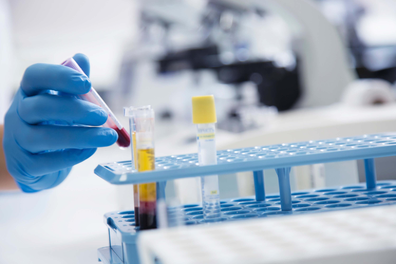 Как лечить повышенное содержание мочевой кислоты в крови?