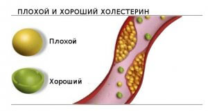 «Плохой», «хороший» и общий холестерин