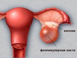Симптомы зависят от размера кисты