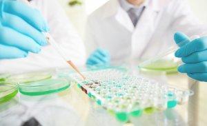 Печеночные пробы – это группа лабораторных анализов направленных на оценку основных функций печени
