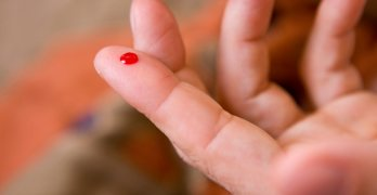 Свертываемость крови – это важный этап работы системы гемостаза