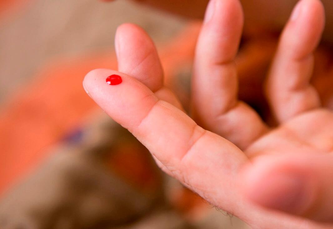 Все фазы поэтапного свертывания крови