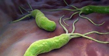 Хеликобактер пилори – это патогенные бактерии, которые инфицируют двенадцатиперстную кишку и желудок