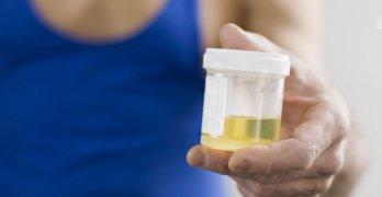 Нормальный уровень белка в моче составляет 0,033 г/л