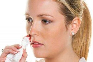 Снижение тромбоцитов в крови приводит к носовым кровотечениям