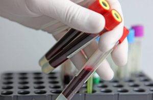 ПЦР – эффективный лабораторный метод диагностики, направленный на выявления возбудителей инфекционных заболеваний