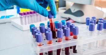 Тромбоциты – это кровяные клетки, которые участвуют в процессах свертывания крови