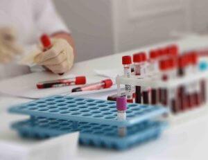 Биохимический анализ крови – эффективная лабораторная диагностика состояния печени