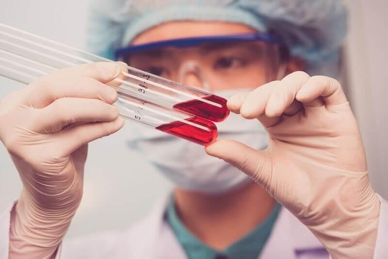 Диагностика и норма ретикулоцитов в крови