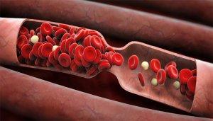 Густая кровь – угроза для жизни!
