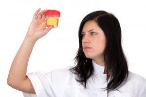 Появление сахара в моче могут вызывать как физиологические, так и патологические факторы