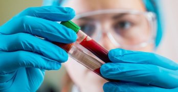 Иммунологический анализ - эффективная диагностика состояния иммунитета