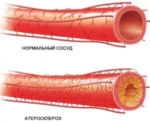 Низкий уровень ЛПВП повышает риск развития атеросклероза!