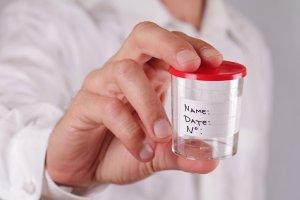 Специальная стерильная емкость для сбора мочи на анализ