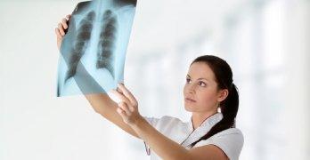 В основе рентгенографии лежат рентгеновские лучи