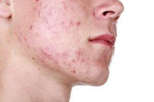 Демодекоз – поражение кожи микроскопическим клещом