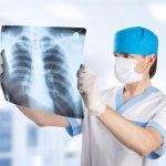 Описание рентгеновских снимков и анализ легочных полей на рентгенограмме