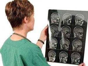 МРТ позволяет получить детальное изображение головного мозга