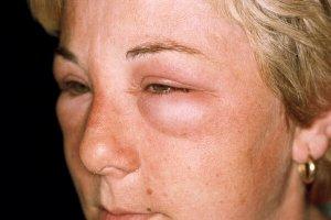 Аллергия опасна своими осложнениями