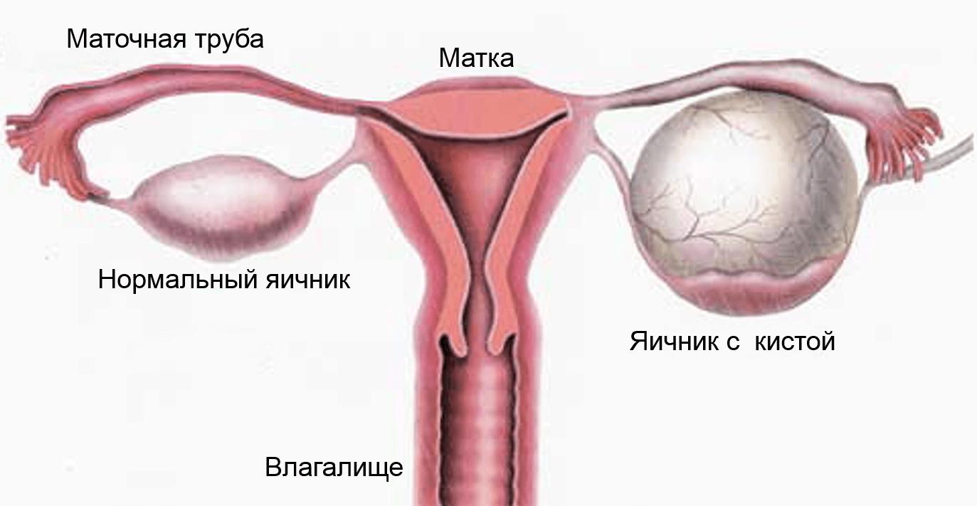 seks-pri-kiste-yaichnika