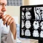Назначение, процедура и заключение МРТ головного мозга