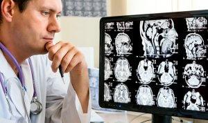 МРТ головного мозга – это сложный, но безопасный метод обследования