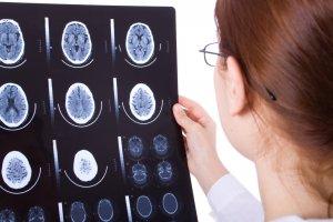 Киста может формироваться в любой зоне мозга