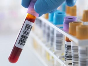 Лимфоциты отвечают за иммунный ответ и иммунную память