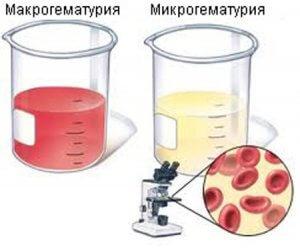 Причины роста уровня клеток и его опасность