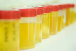 Для сбора мочи нужно подготовить 8 стерильных баночек